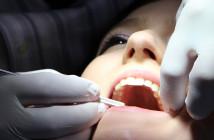 Behandlung Zahnfleisch